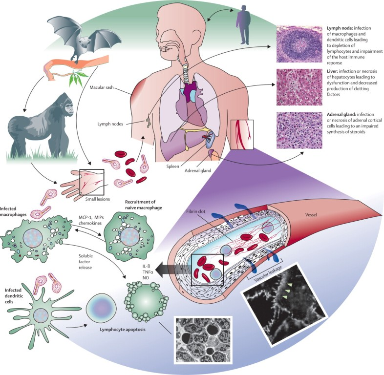 Ebola-virus-pathogenesis