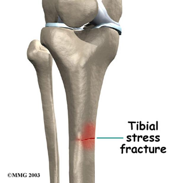 A stress fracture