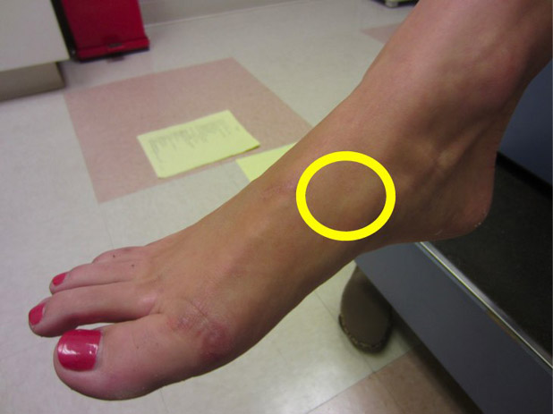 A stress fracture injury