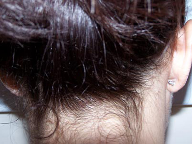 Lice eggs on the back of the neck