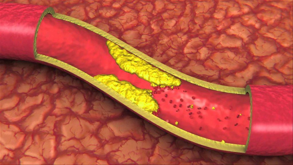 blocked arteries symptoms