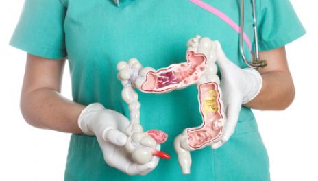 colon cancer description symptoms treatments
