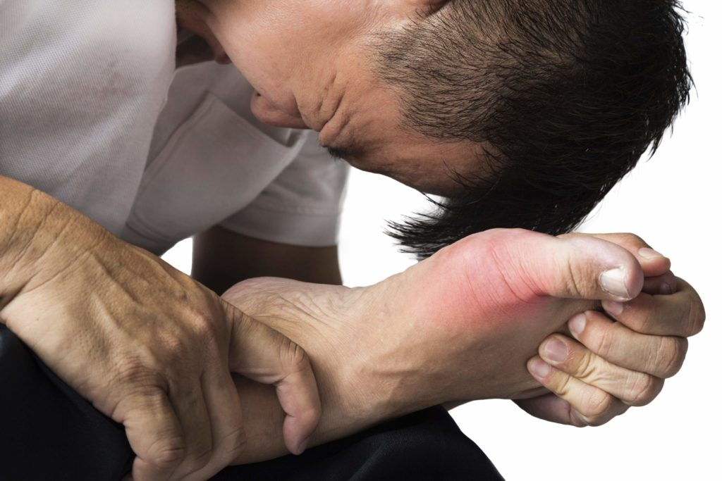 Photo of Gout Treatment: Here We Could Find the Best Treatments