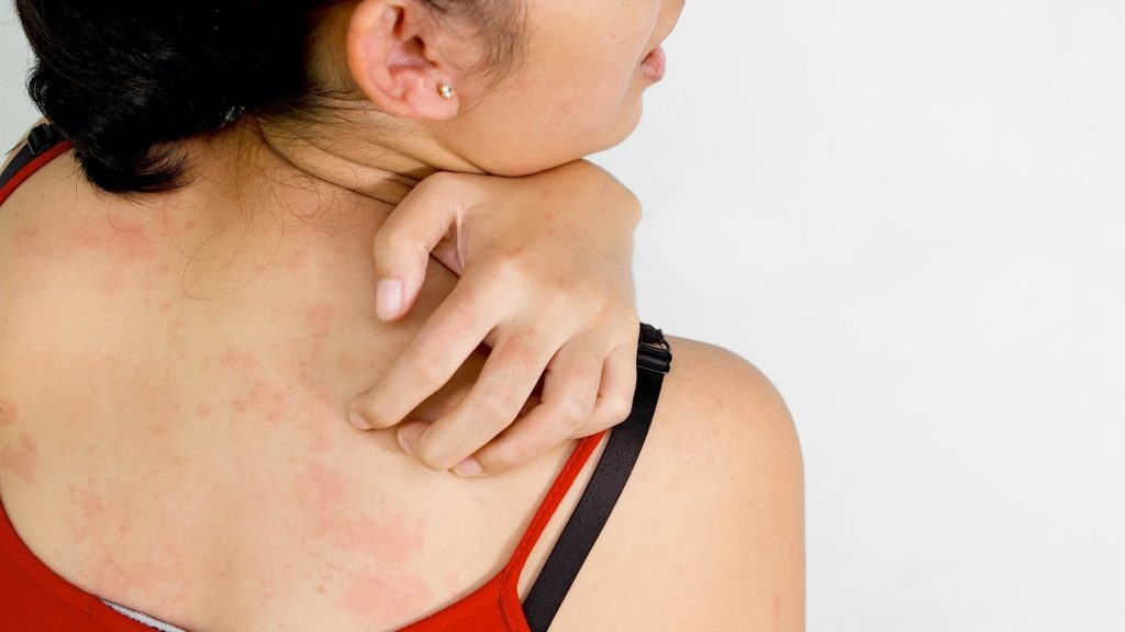 shingles viral infection main causes protect disease
