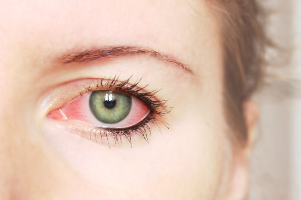 conjunctivitis infection possible preventions