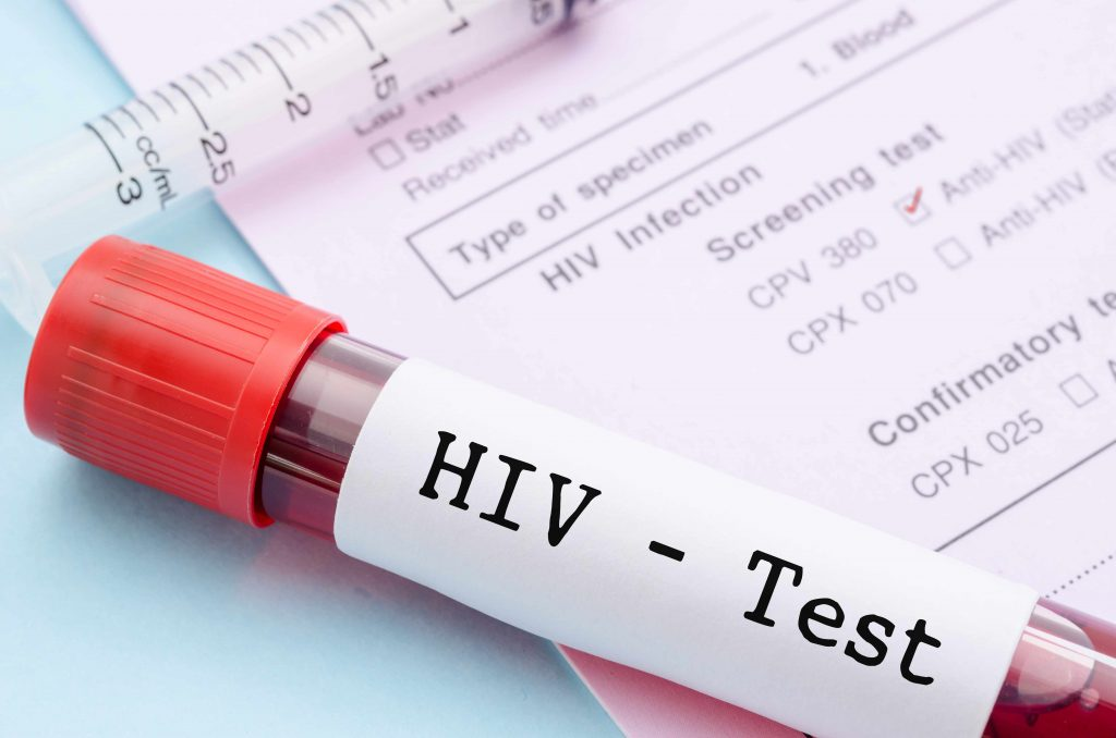 HIV Disease: Scientists Make Cells Resistant To HIV - Graspers.com